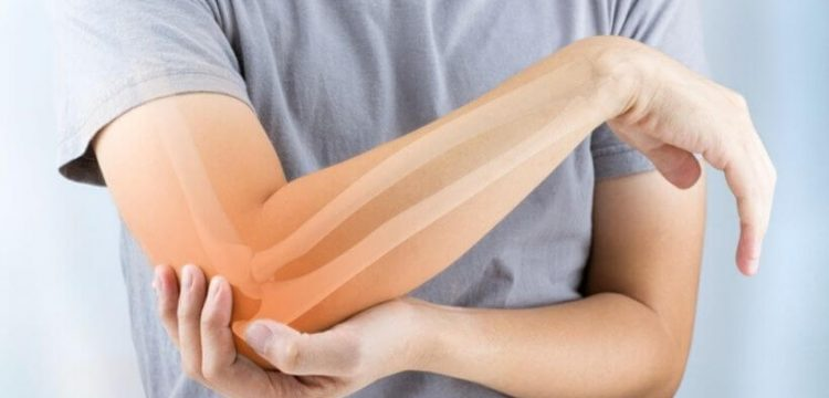 Infusion Therapy for Osteoporosis