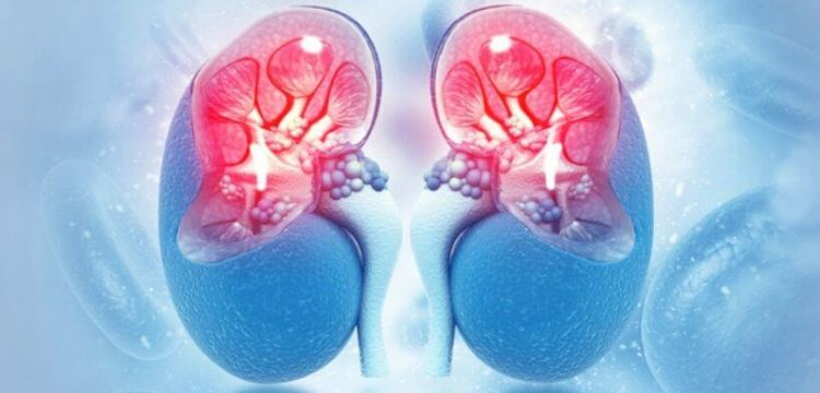 Rituximab Infusion Therapy for Kidney Disease